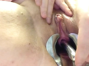 Pisshole sounding with speculum
